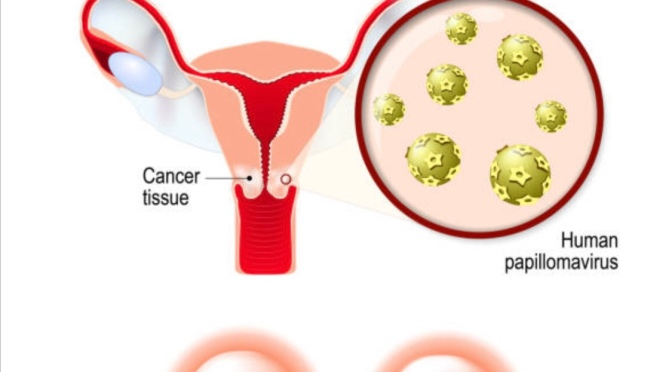 Ministry of Public Health | Cervical  Cancer  Screening   Campaign